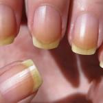 Почему желтеют ногти, как это исправить?